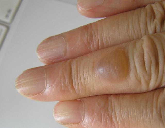 やけど 痛い 指