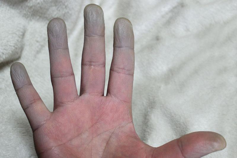チアノーゼの右手