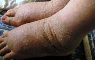 皮膚経過2009 033