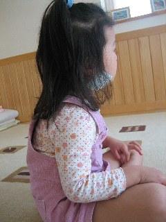 流行性耳下腺炎