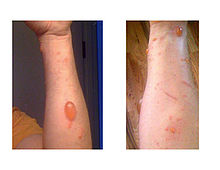 220px-Urushiol_induced_contact_dermatitis.jpg