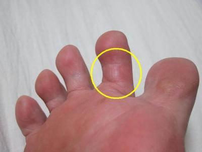 足の指を蚊に刺された~!