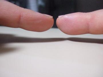 左より指が膨張してるよ・・・