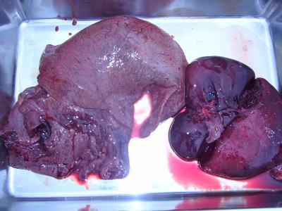 取り出された肝臓と心臓