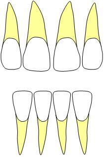 incisors0423.jpg