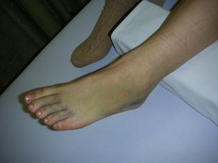 第五中足骨骨折2
