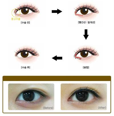 目の美容整形