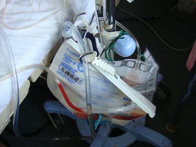 手術後の管
