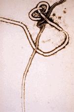 Ebola_virus_em.png