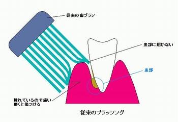 歯茎の腫れ痛み