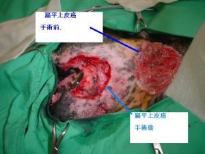 扁平上皮癌1
