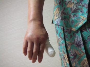 腫れた右手9-3006_幅350