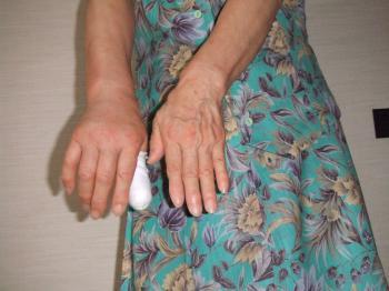腫れた手比較9-3009_幅350