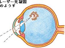 moumakuhakuri3.jpg