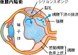 moumakuhakuri4.jpg