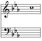 和声・コード進行(メロディーにコードをつける)短調