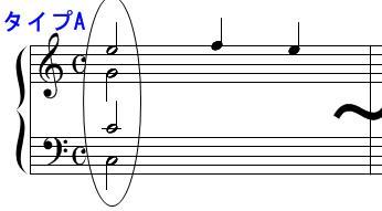 和声・コード(開離配置)