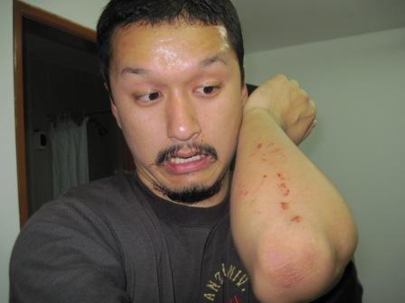 シーチキン炊き込みご飯・レティシア・怪我 030