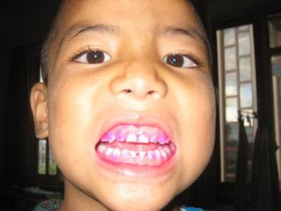 歯の汚れチェック1