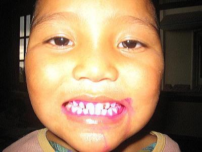 歯の汚れチェック3