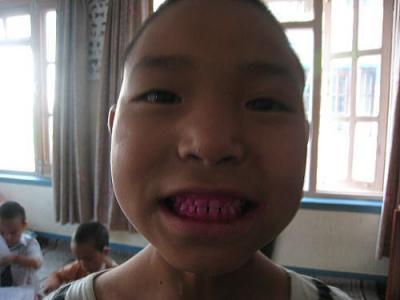 歯の汚れチェック4