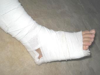 固定板で固定された まるで骨折したかのような足