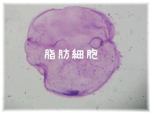 ナオミの脂肪細胞(脂肪腫)